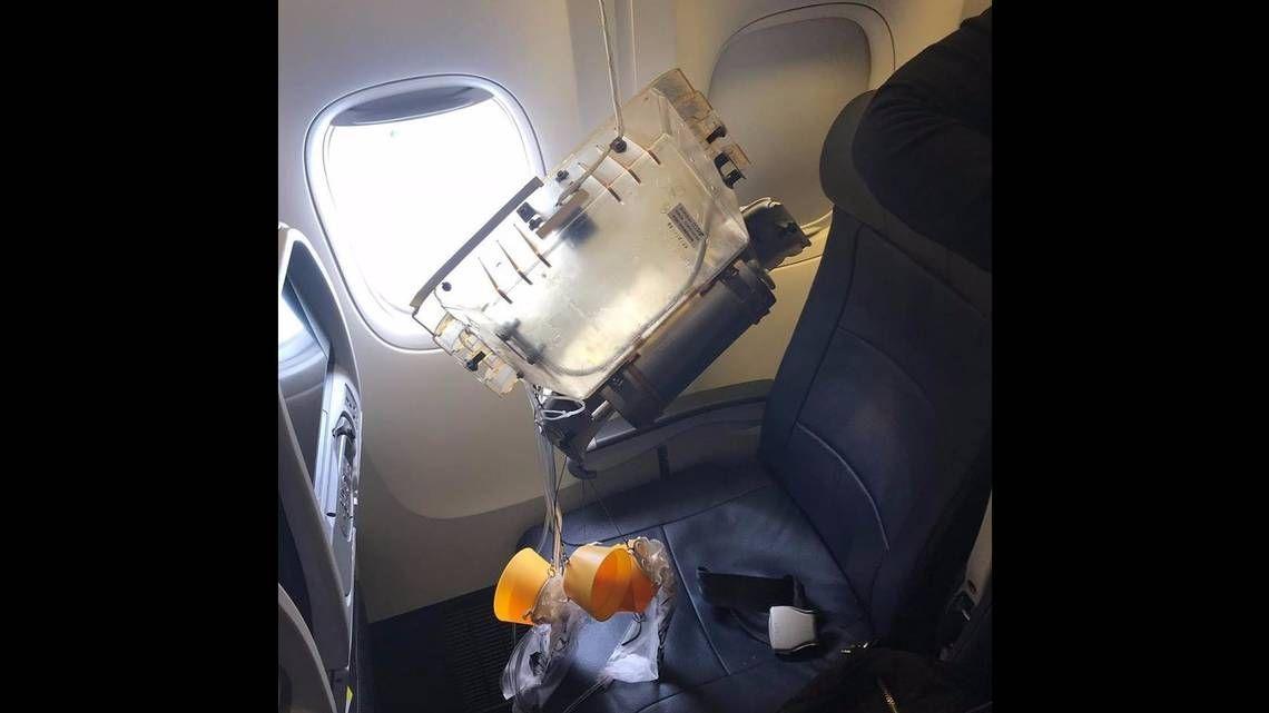 飞机氧气瓶突然掉落 一岁男童不幸被砸中头部