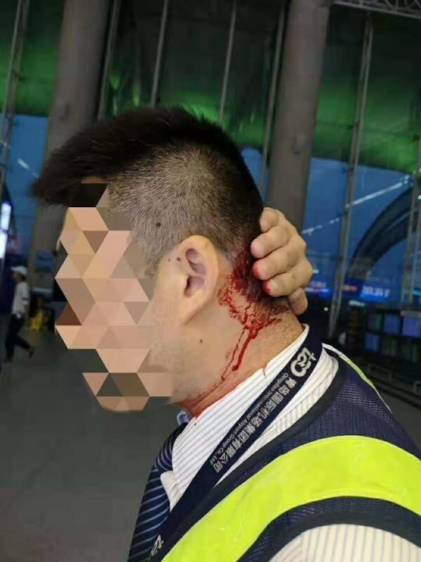 醉酒旅客殴打机场工作人员 被处以拘留与经济处罚